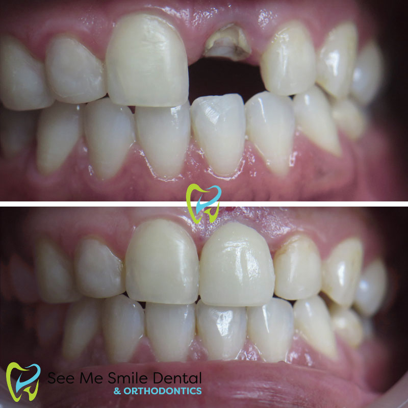 Same Day Emergency Tooth Extraction and Dental Implant Santa Barbara
