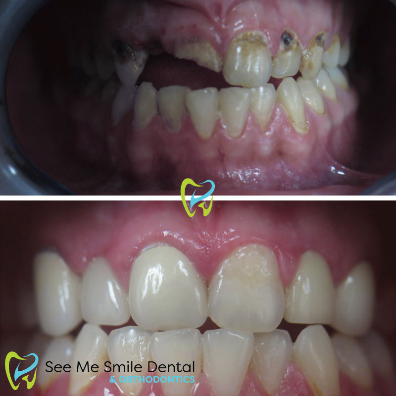 Implants, Crowns, and Veneers with Tooth Decay Santa Barbara CA