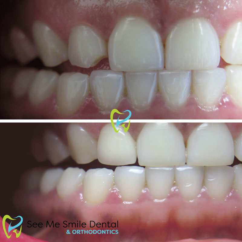 Chipped Tooth fixed by Veneers Santa Barbara CA